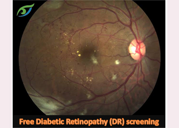 Free diabetic eye check-up every Saturday